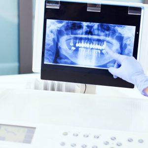Ways to Effectively Reverse Dental Bone Loss Portrait