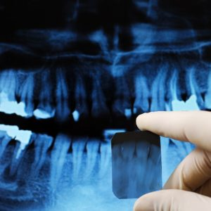 Why X-rays Are Important to Your Dental Health Portrait