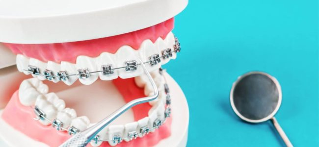 Are Braces Painful?