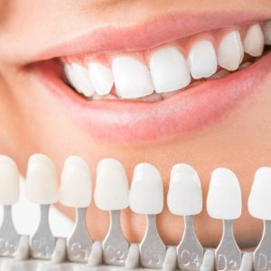 What is the Best Whitener for Your teeth? Portrait