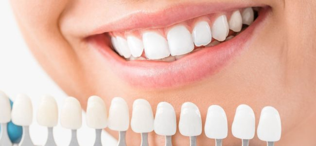 What is the Best Whitener for Your teeth?