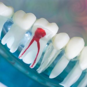Is There an Alternative to a Root Canal? Portrait