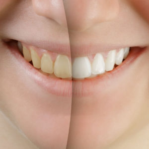 Is It Good to Do Teeth Whitening? Portrait