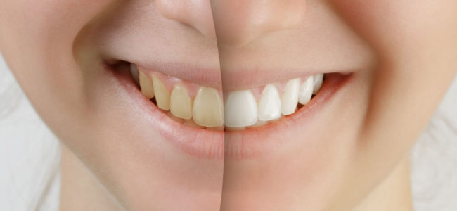 Is It Good to Do Teeth Whitening?