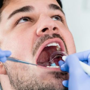 How Can I Remove Tartar From My Teeth? Portrait
