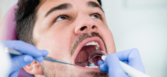 How Can I Remove Tartar From My Teeth?
