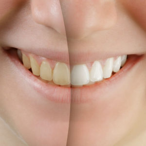 How Can I Whiten My Teeth Quickly? Portrait