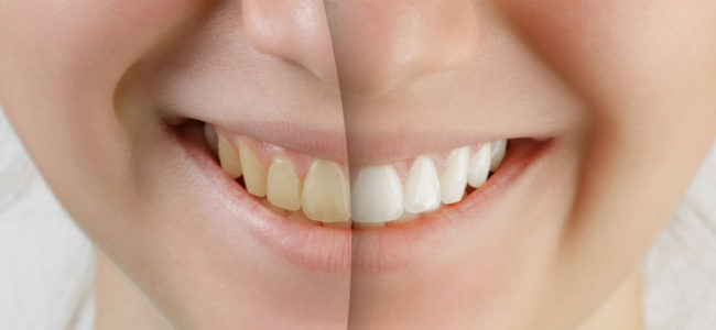 How Can I Whiten My Teeth Quickly?