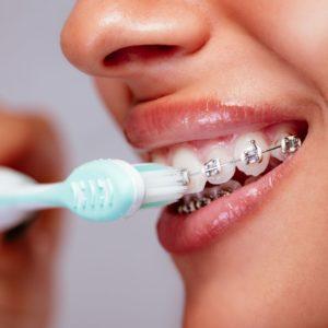 Can Braces Ruin Your Teeth? Portrait