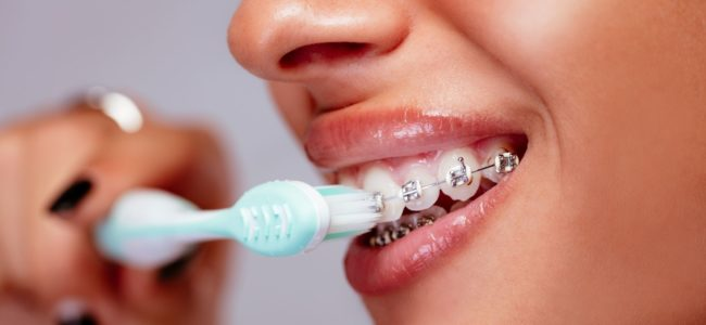 Can Braces Ruin Your Teeth?