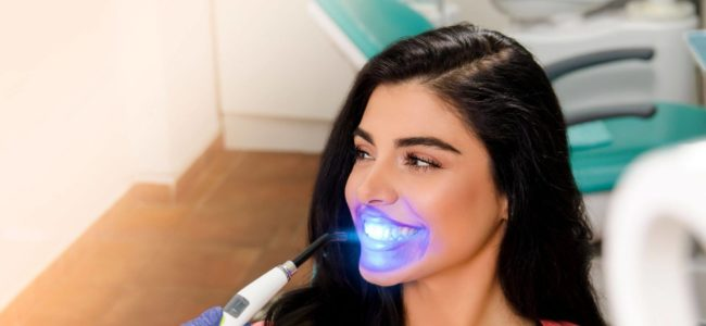 How Much Does It Cost to Get Your Teeth White?