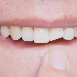 Can a Cracked Tooth Heal On Its Own? Portrait