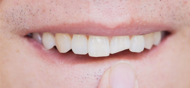 Can a Cracked Tooth Heal On Its Own?
