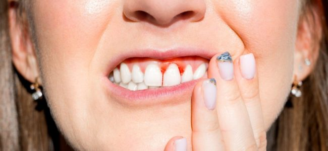 Does Gingivitis Hurt?